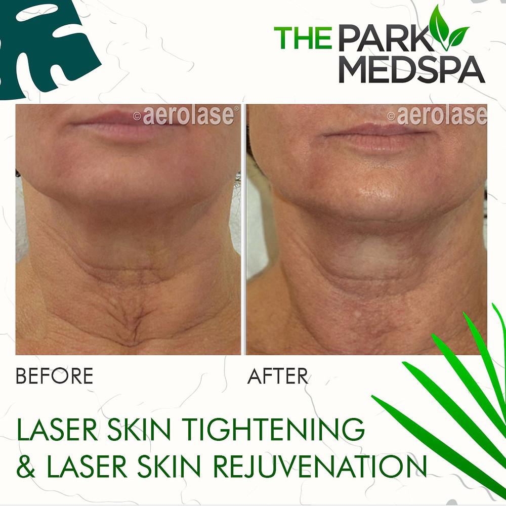 Skin Rejuvenation & Tightening at The Park Med Spa in Highland Park, NJ