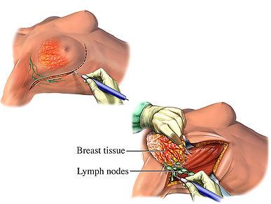 mastectomy-illustration-bf9ecb.jpg
