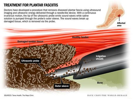 Tenex Procedure for Plantar Fasciitis