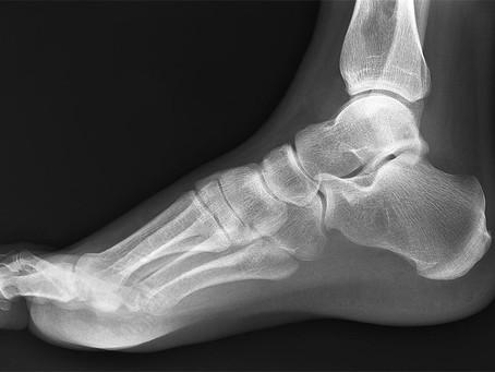 Diagnostic Tests for Plantar Heel Pain