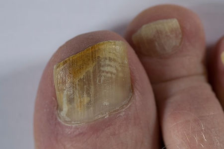 fungal nail.jpg