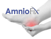 Amniotic Membrane Injection Therapy