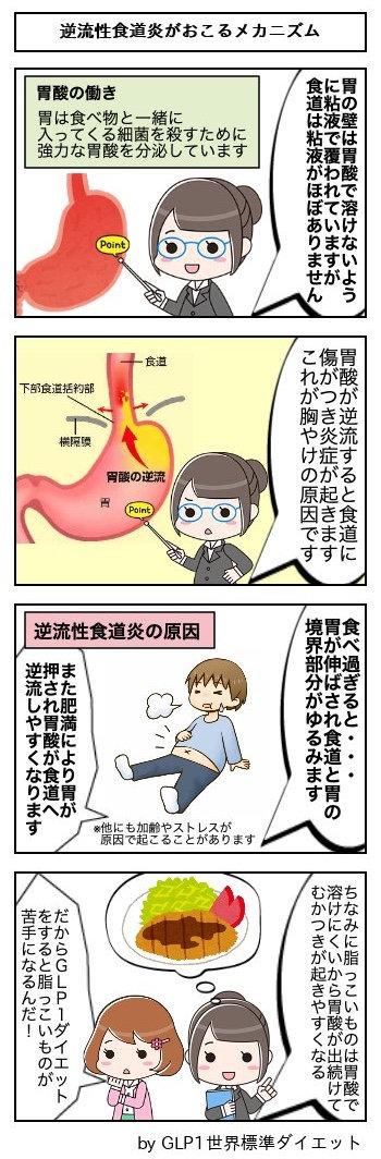 66逆流性食道炎がおこるメカニズム.jpg