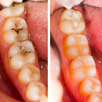 At The Dentist_edited.jpg