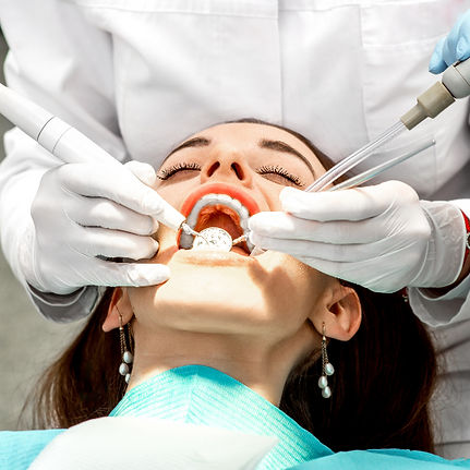 Professional teeth cleaning_edited.jpg