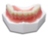 Full Denture.png