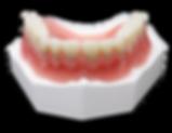 Full Denture.png