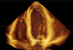 Heart Ultrasound Scans (Echo)