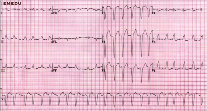 Heart Trace (ECG)
