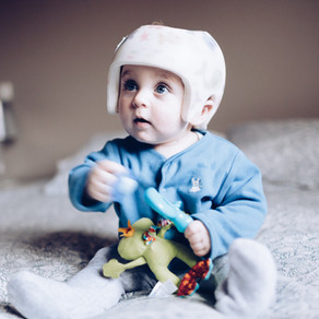 5 Things to help Plagiocephaly (flat head syndrome) at home