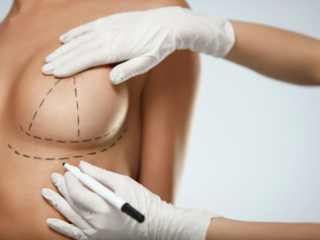 Benefits of Breast Reduction Surgery