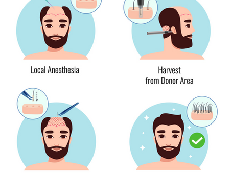 Difference Between FUE Hair Transplant & DHI Hair Transplant