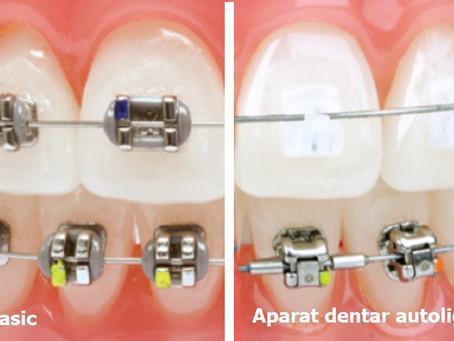 Ce aparat dentar sa aleg?