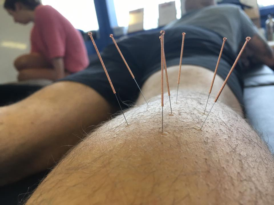 accupuncture2