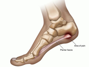 Spotlight on Plantar Faciitis .... the dreaded running injury!