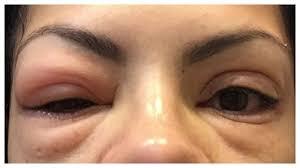 eyelash extensions...why I DON'T do them
