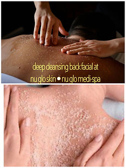 Back Facial at nu glo - specialized for men and wome!