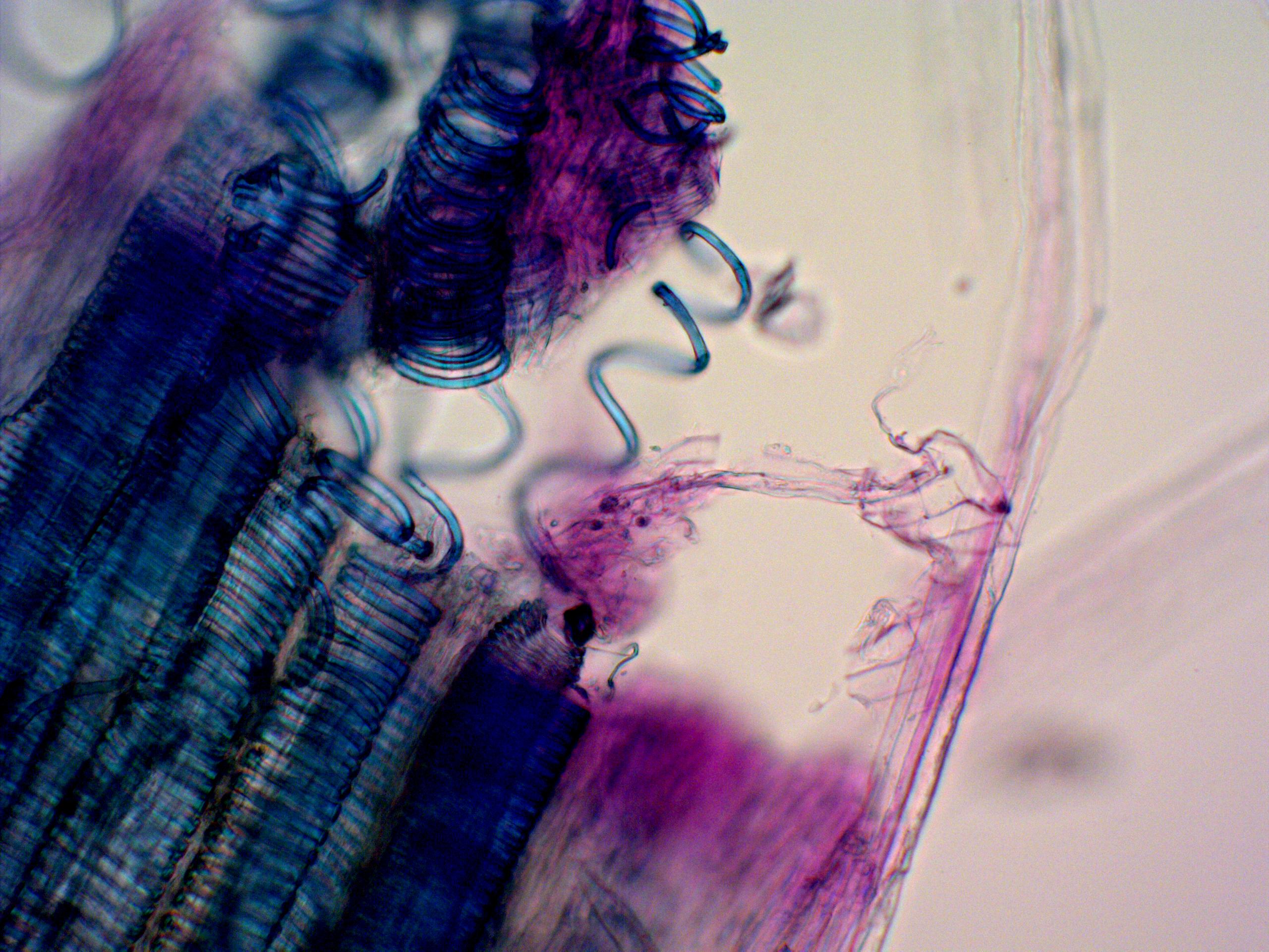 Helical Proto-Xylem of Celery