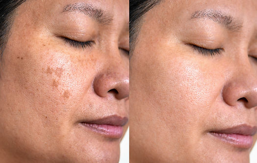 Image before and after spot melasma pigmentation facial treatment on middle age asian woma