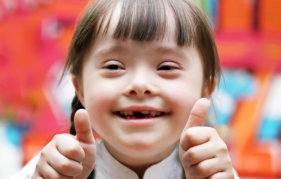 Portrait of beautiful disabled girl saying HI!