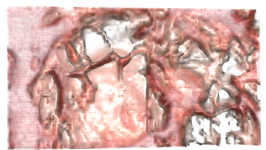 kdiney scan pink.png