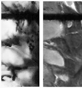 kdiney comp mri and openwater.png