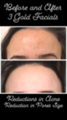 Before & After 3 Gold Facials.jpeg