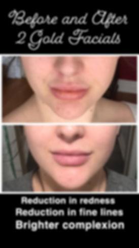 Before & After 2 Gold Facials.jpeg