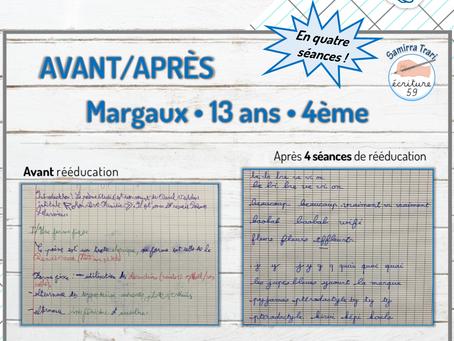 Avant/Après de Margaux 13ans