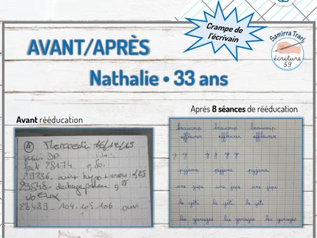 Avant/Après de Nathalie 33ans