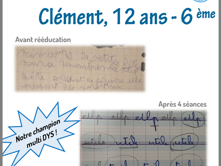 Avant/Après de Clément