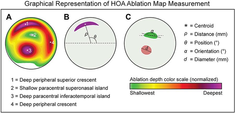 keratoconus_HOA_ablation_maps.jpg