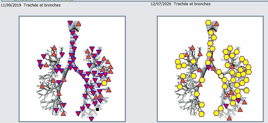 Biosonance 2.jpg