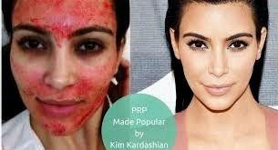 PRP Vampire Facial