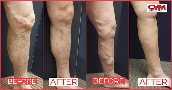 CVM Sclerotherapy before after.jpg
