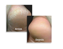 antes-depois--feet.png