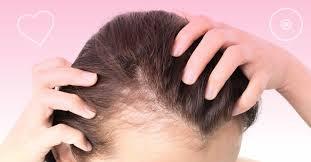 Segundo dados, cerca de 42 milhões de brasileiros sofrem com a calvície