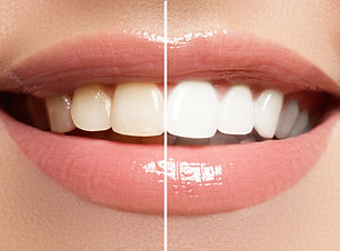 Perfect smile before and after bleaching