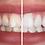 Thumbnail: At-Home Teeth Whitening Kit