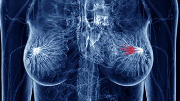 HOW CAN CBD OIL CURE BREAST CANCER? EVERYTHING YOU NEED TO KNOW