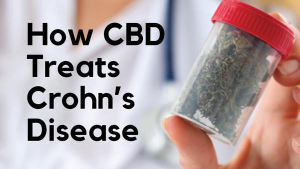 Here's How CBD Treats Crohn's Disease