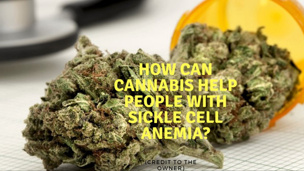 CBD FOR SICKLE CELL ANEMIA
