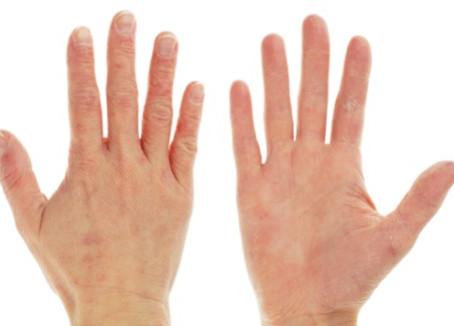 Hey trimmer, hoe verzorg jij je handen?