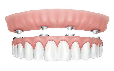 All-On 4 in zirconia Centro Odontoiatrico Smm