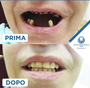 Centro Odontoiatrico Smm prima e dopo
