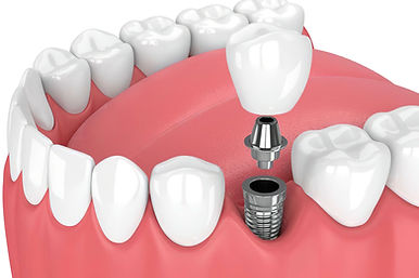 Impianto dentale Centro Odontoiatrico SMM
