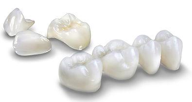 Corona metallo ceramica Centro Odontoiatrico SMM