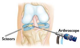 kolano.artroskopia.jpg