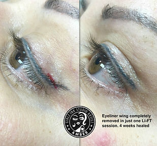 SALINE TATTOO REMOVAL Designer Brows
