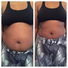 Red Light Therapy for Stretch Marks